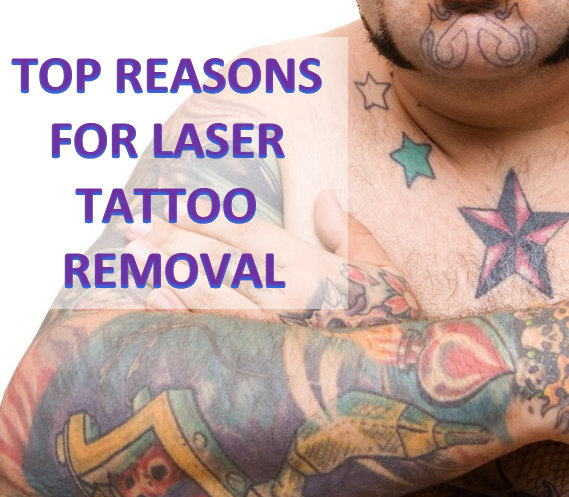100 precision laser tattoo removal tattoo 45 best for Tattoo removal lexington
