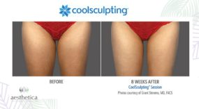 Aesthetica CoolSculpting Before and After