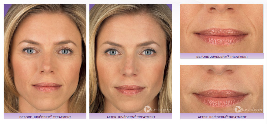 Juvederm Injections - Aesthetica Medical Spa Utah