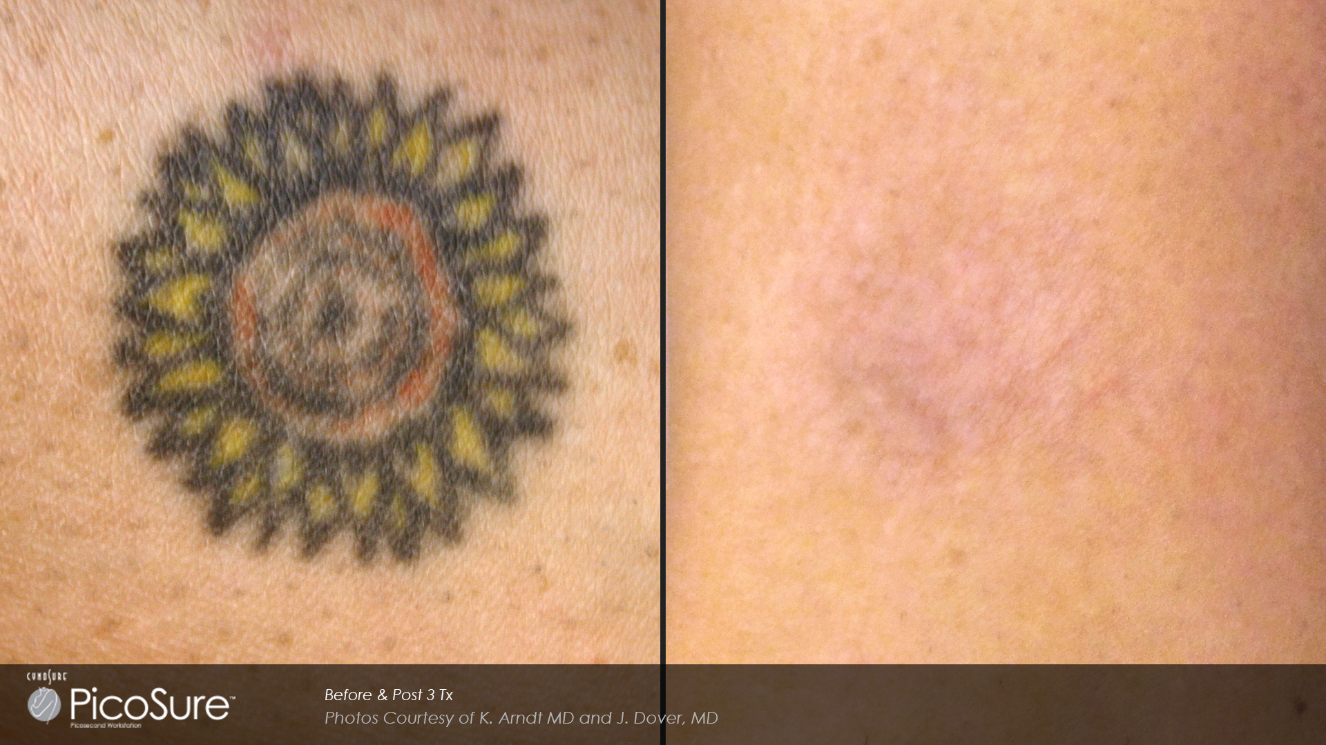PicoSure-Before-and-After-01 - Aesthetica