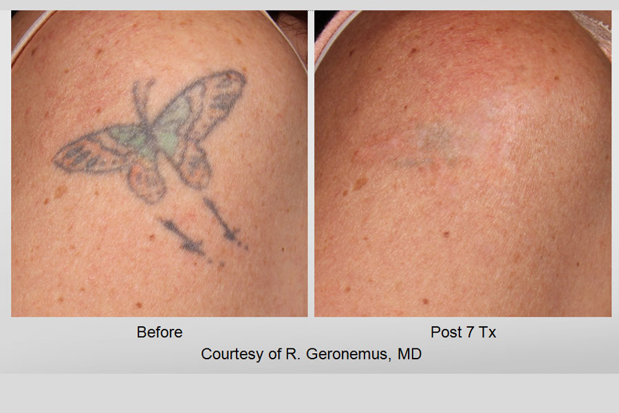 Utah tattoo removal : Paradise pup chicago il