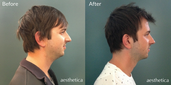 Kybella before and after photos utah county