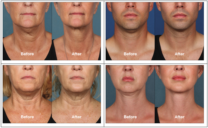Kybella - Before and After Results