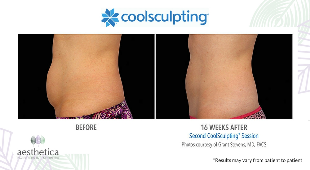 CoolSculpting before and after 2