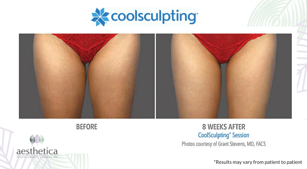 CoolSculpting before and after-7