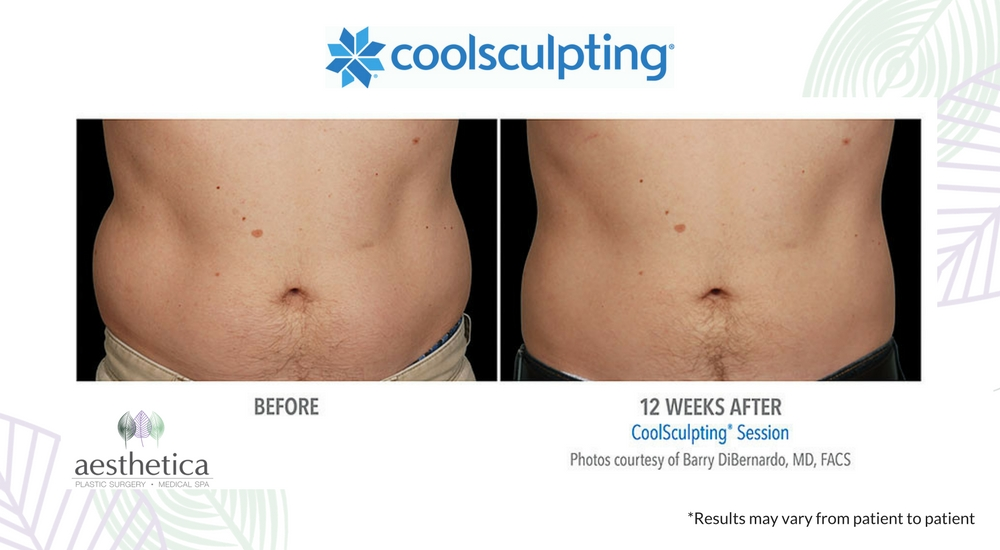 CoolSculpting before and after 8-2