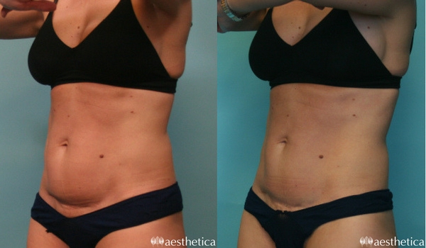 coolsculpting abdomen before and after side view