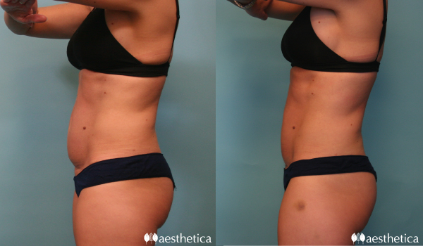 CoolSculpting at Aesthetica