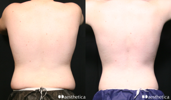 Coolsculpting for men flanks/love handles back view