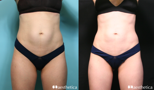 coolsculpting abdomen before and after front view