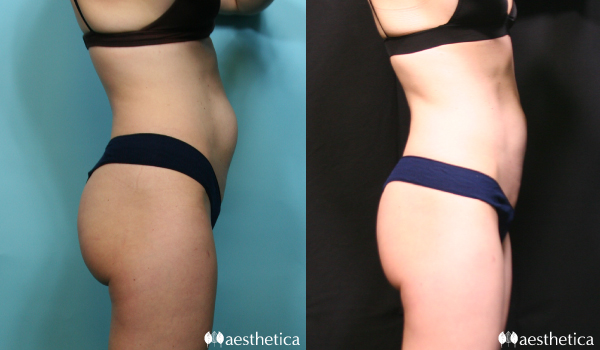 coolsculpting woman abdomen before and after side view