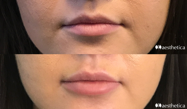 lip injection before and after