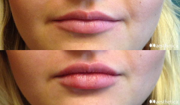 lip injections utah county