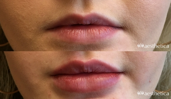 Lip injections Utah - Aesthetica Plastic Surgery and Medical Spa