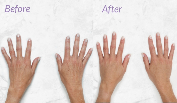 hand filler before and after