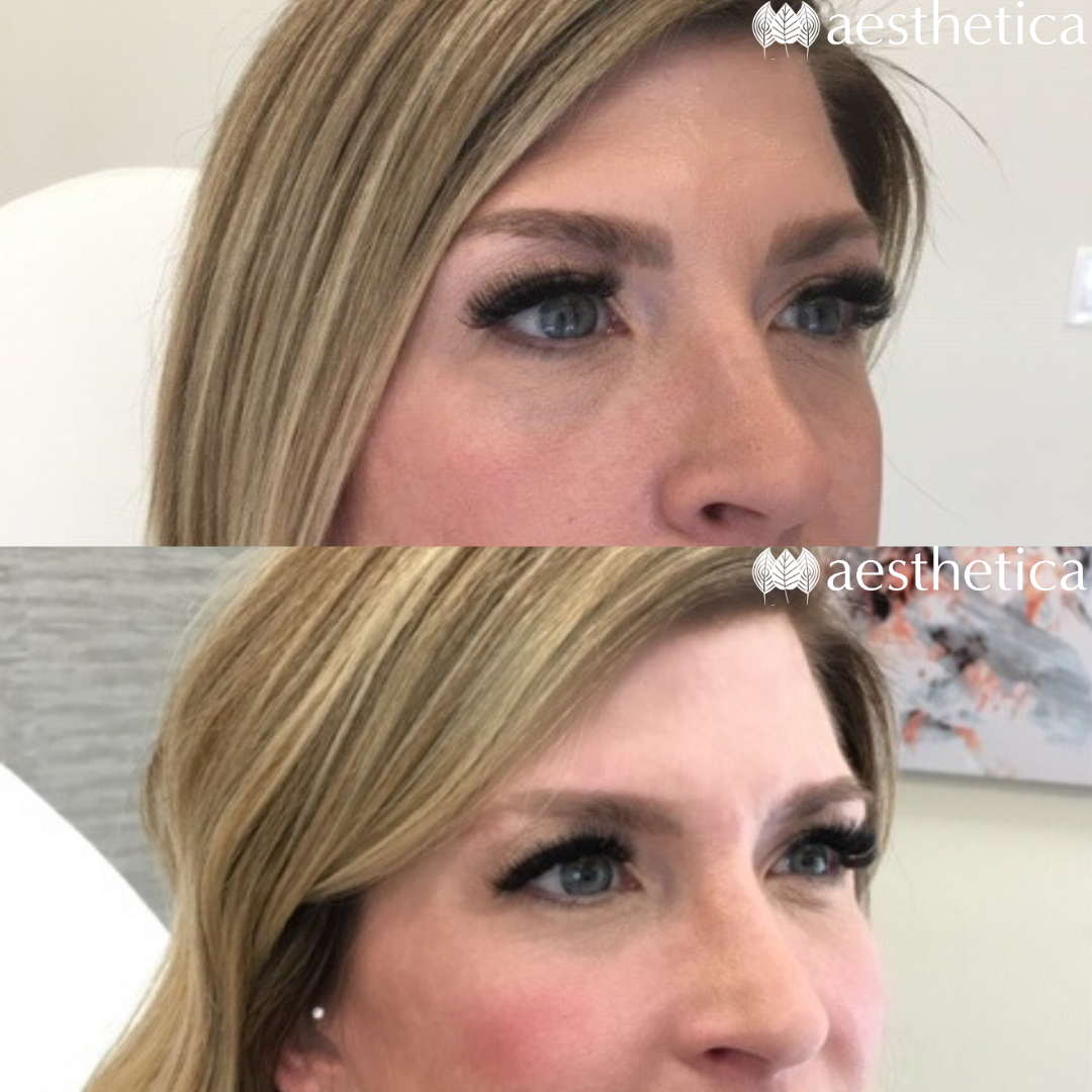 under eye filler before and after photo