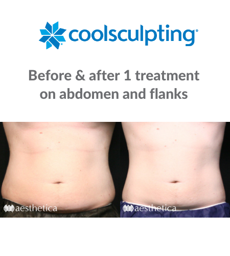 CoolSculpting men before and after front