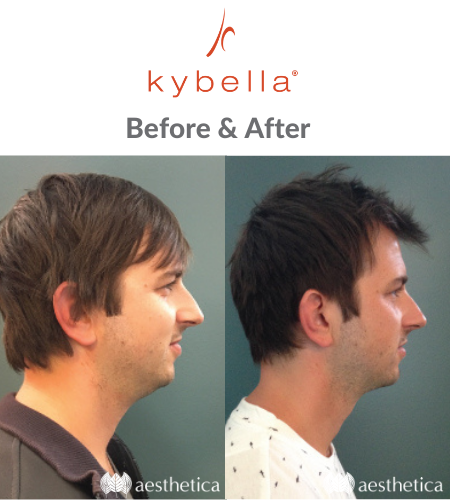 Kybella for men Utah before and after