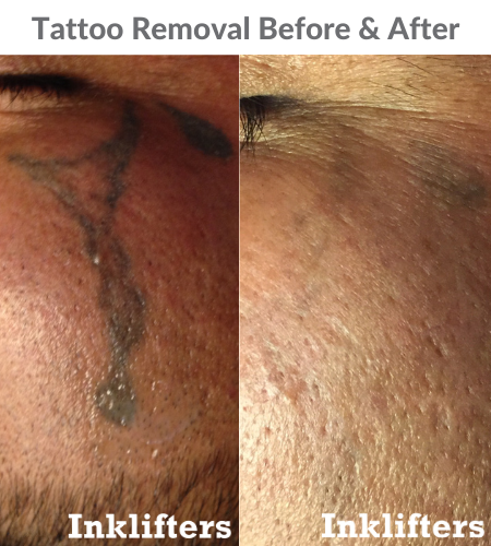 Tattoo removal for men before and after