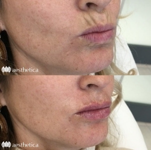 filler for lip lines before and after
