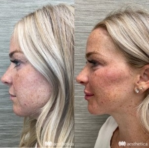 before and after cheek contouring with voluma filler
