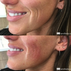 filler for smile lines before and after photo